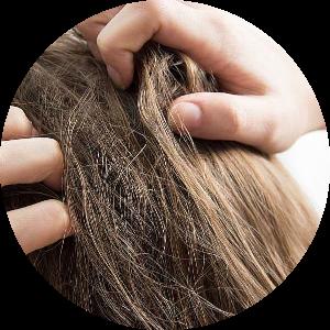 Sucha skóra głowy