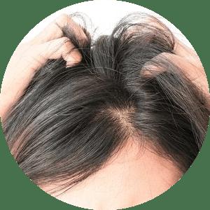 Swędząca skóra głowy - atopowe zapalenie skóry